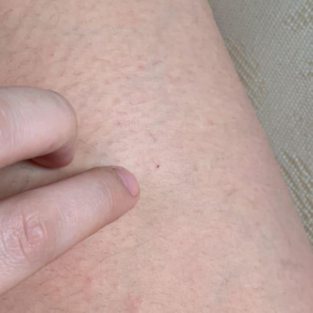 Zara Owen needleprick