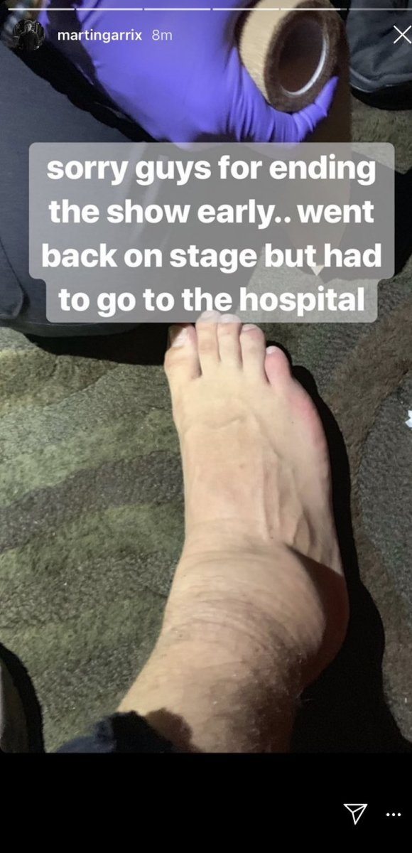 Martin Garrix Injury