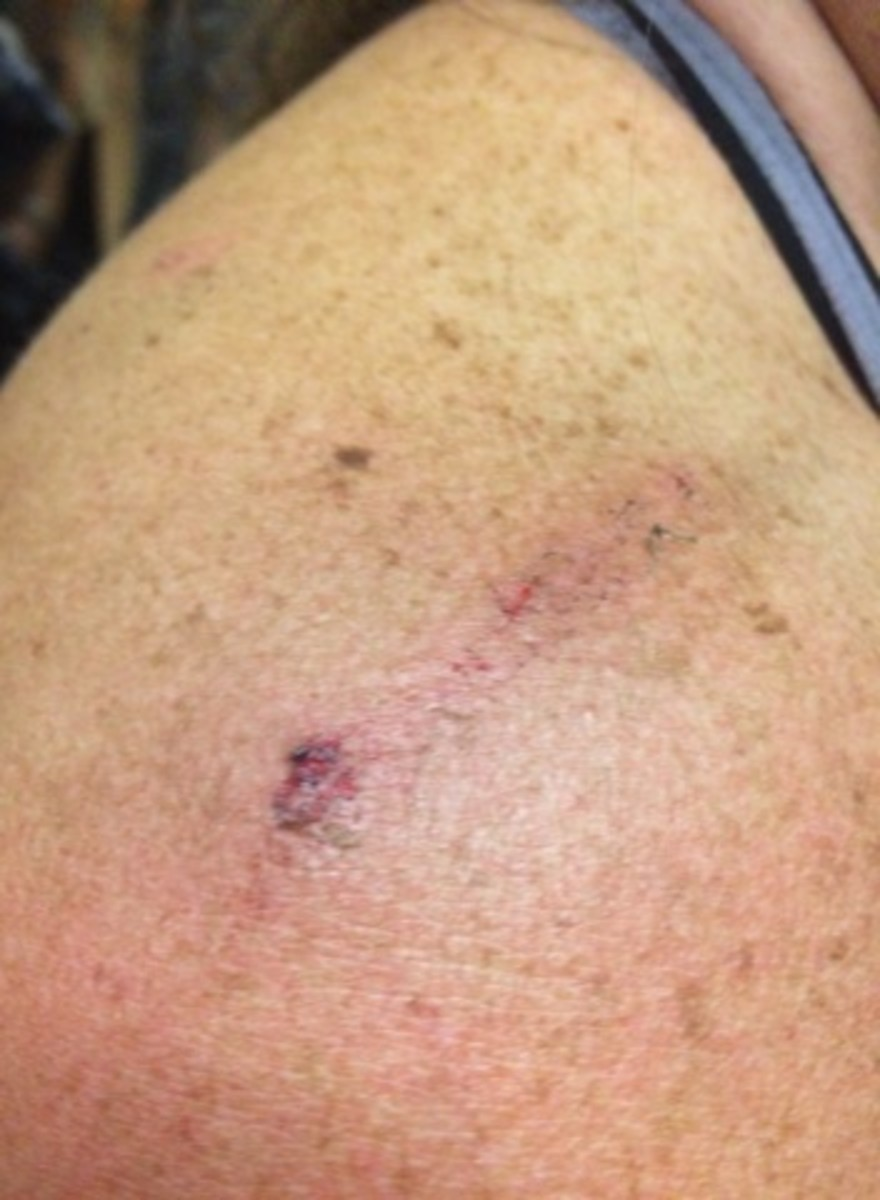 A photo of an attendee's shoulder after nuts and bolts allegedly fell on them at Bassnectar's Freestyle Sessions Summer Gathering at the Denver Coliseum.